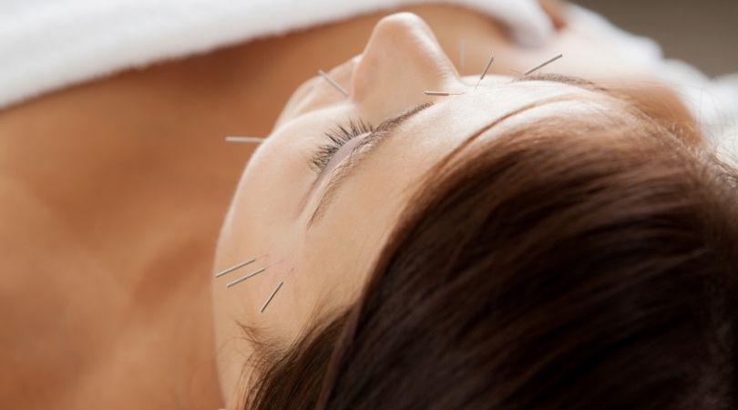 acupuntura y qi: importancia en la medicina tradicional china